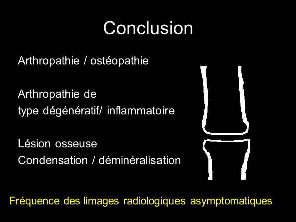 Conclusion Arthropathie / ostéopathie Arthropathie de type dégénératif/ inflammatoire Lésion osseuse Condensation / déminéralisation Fréquence des limages radiologiques asymptomatiques