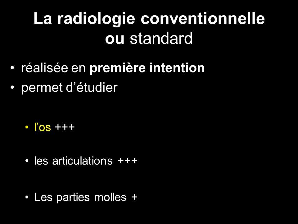 La radiologie conventionnelle ou standard •réalisée en première intention •permet d'étudier •l'os +++ •les articulations +++ •Les parties molles +