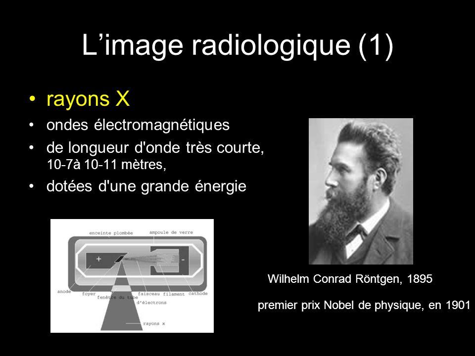 L'image radiologique (1) •rayons X •ondes électromagnétiques •de longueur d onde très courte, 10-7à 10-11 mètres, •dotées d une grande énergie premier prix Nobel de physique, en 1901 Wilhelm Conrad Röntgen, 1895