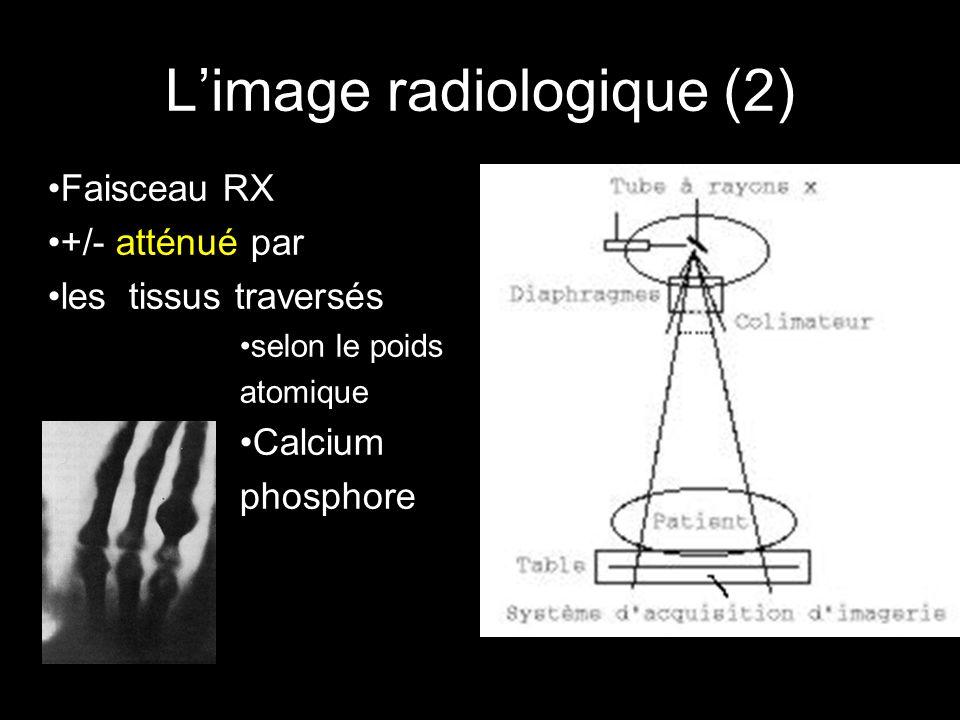 L'image radiologique (2) •Faisceau RX •+/- atténué par •les tissus traversés •selon le poids atomique •Calcium phosphore