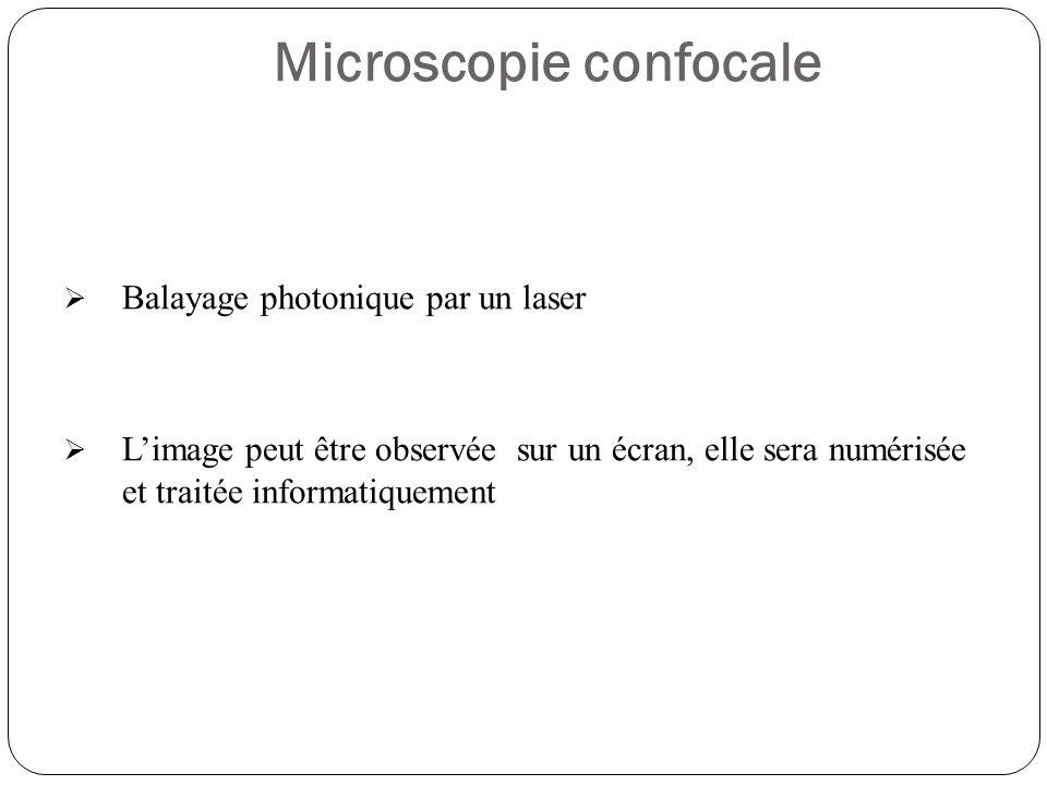 Microscopie confocale  Balayage photonique par un laser  L'image peut être observée sur un écran, elle sera numérisée et traitée informatiquement