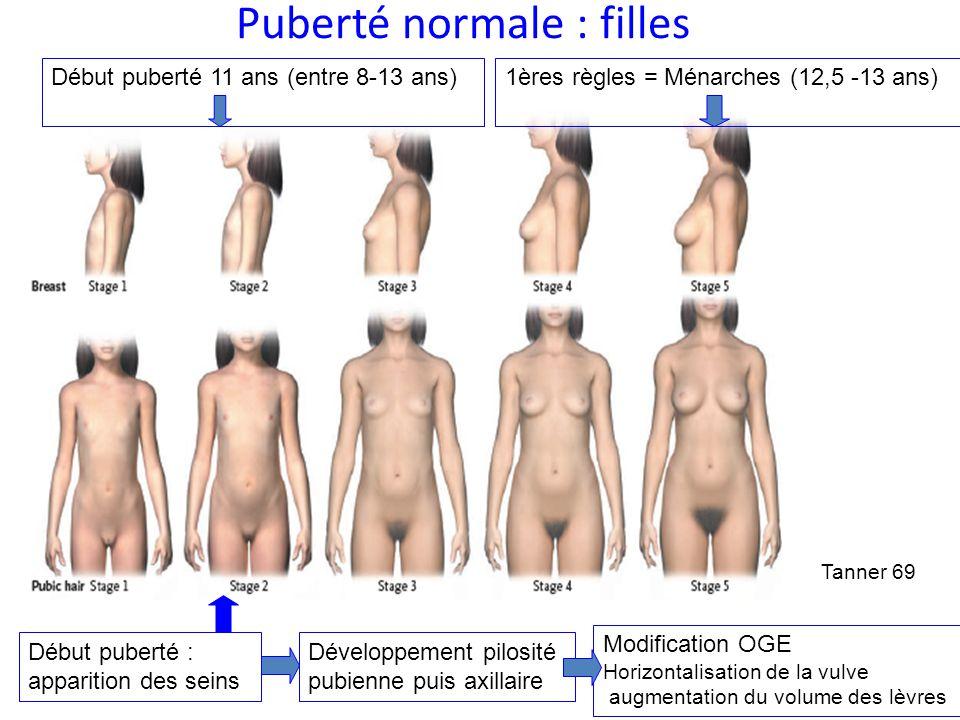 Puberté normale : filles Tanner 69 Début puberté : apparition des seins Développement pilosité pubienne puis axillaire Modification OGE Horizontalisat