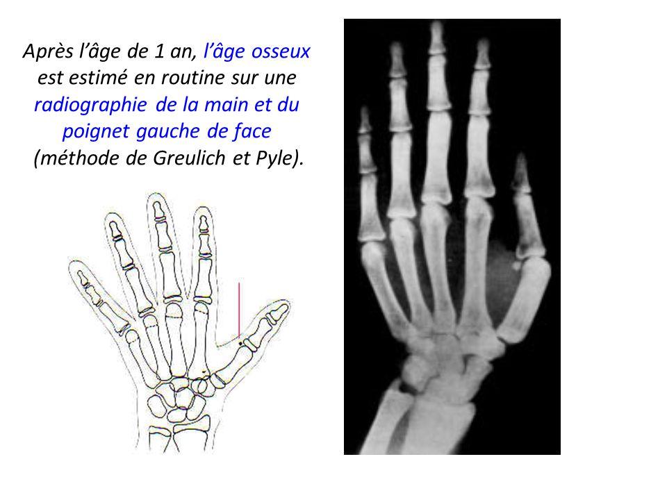 Après l'âge de 1 an, l'âge osseux est estimé en routine sur une radiographie de la main et du poignet gauche de face (méthode de Greulich et Pyle).