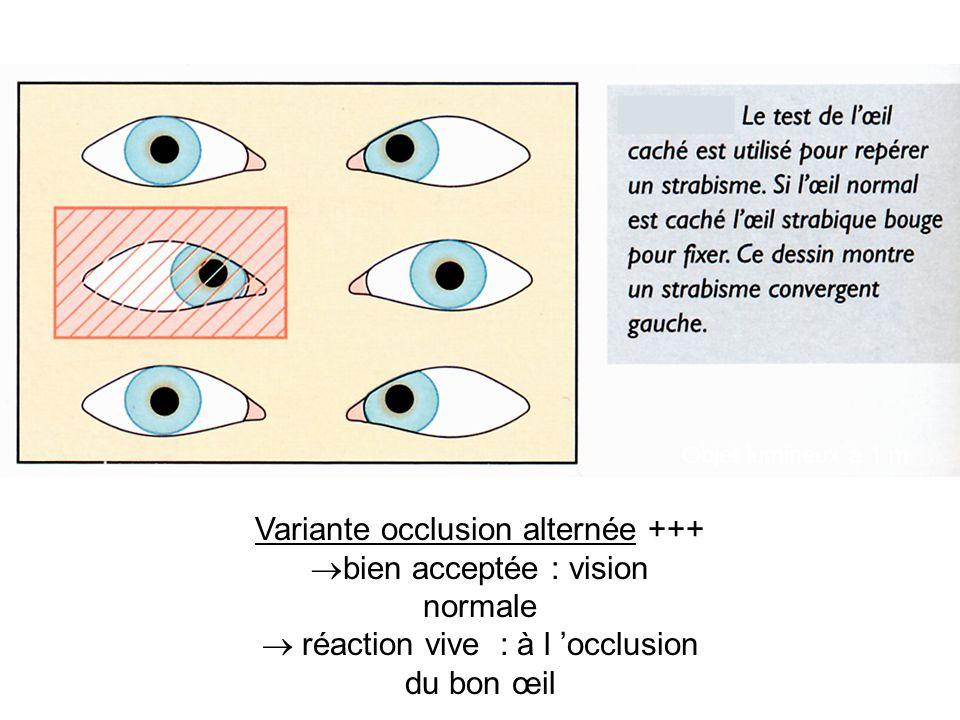 Objet lumineux à 1 m Variante occlusion alternée +++  bien acceptée : vision normale  réaction vive : à l 'occlusion du bon œil