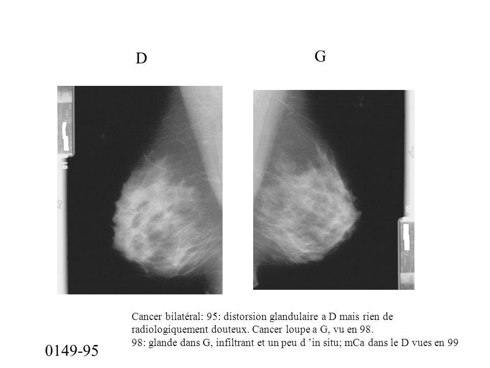 0149-95 D G Cancer bilatéral: 95: distorsion glandulaire a D mais rien de radiologiquement douteux. Cancer loupe a G, vu en 98. 98: glande dans G, inf