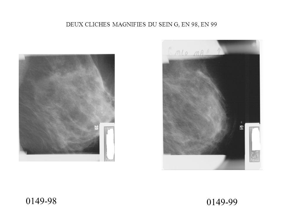 0149-99 DEUX CLICHES MAGNIFIES DU SEIN G, EN 98, EN 99