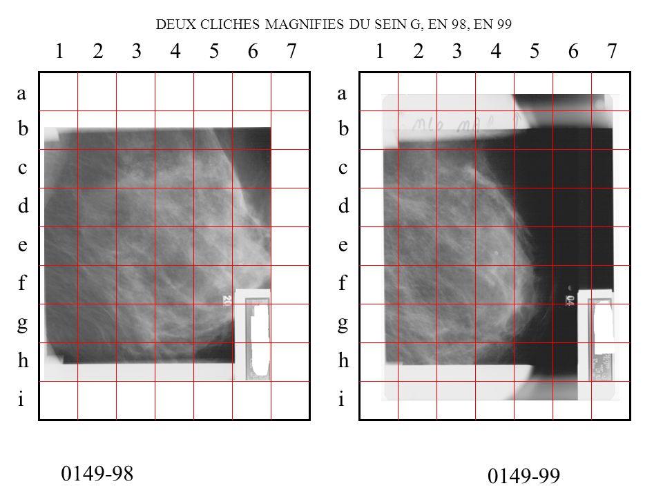 0149-98 0149-99 DEUX CLICHES MAGNIFIES DU SEIN G, EN 98, EN 99 a b c d e f g h i 1234567 a b c d e f g h i 1234567