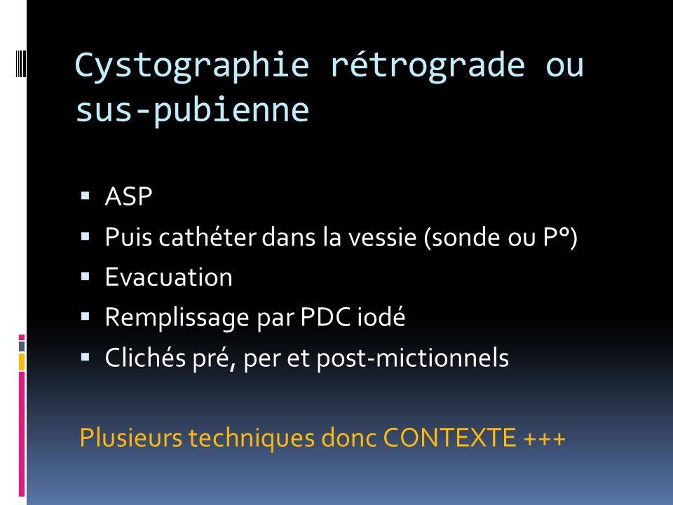 Cystographie rétrograde ou sus-pubienne  ASP  Puis cathéter dans la vessie (sonde ou P°)  Evacuation  Remplissage par PDC iodé  Clichés pré, per