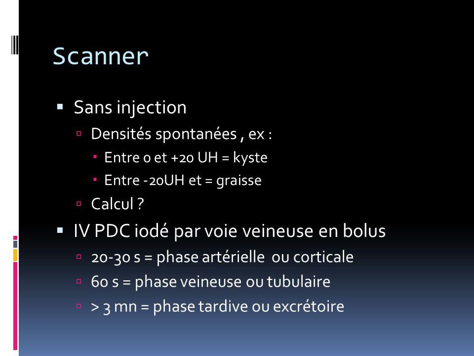 Scanner  Sans injection  Densités spontanées, ex :  Entre 0 et +20 UH = kyste  Entre -20UH et = graisse  Calcul ?  IV PDC iodé par voie veineuse