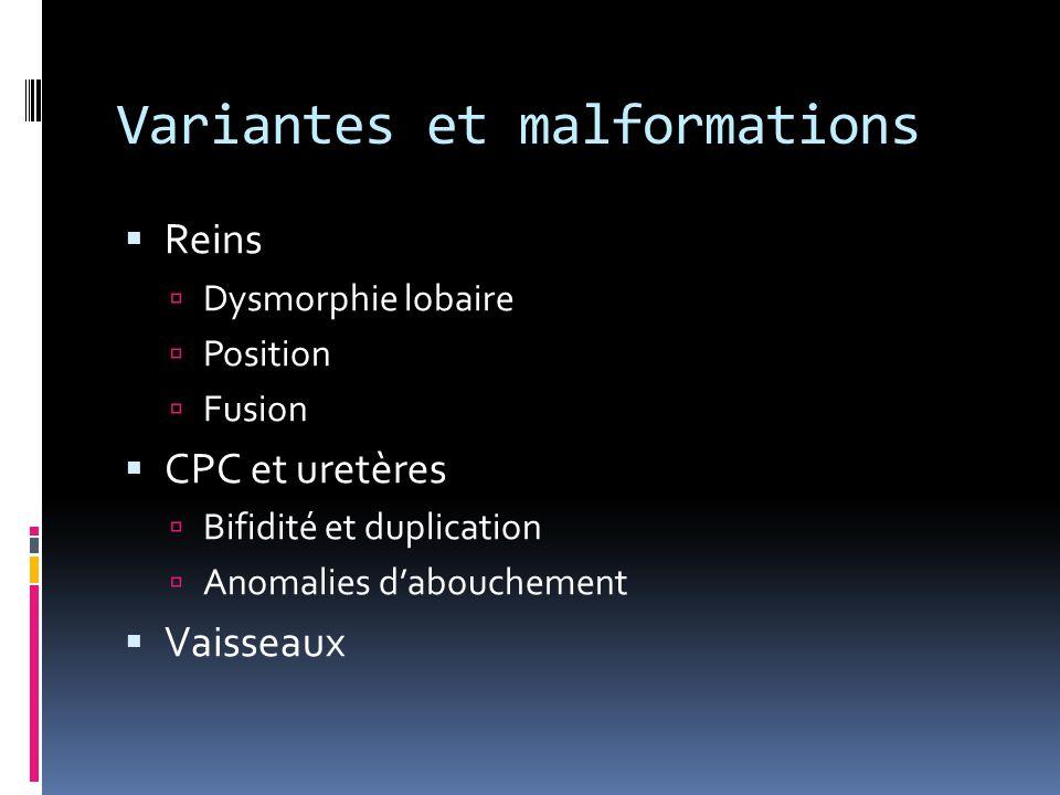 Variantes et malformations  Reins  Dysmorphie lobaire  Position  Fusion  CPC et uretères  Bifidité et duplication  Anomalies d'abouchement  Va