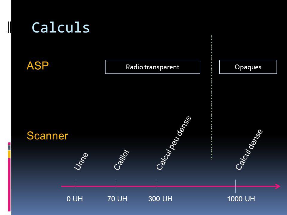 Calculs 0 UH70 UH300 UH1000 UH UrineCaillot Calcul peu dense Calcul dense Radio transparentOpaques ASP Scanner