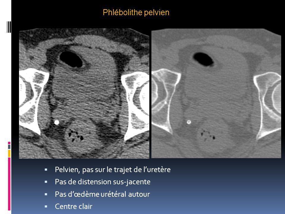 Phlébolithe pelvien  Pelvien, pas sur le trajet de l'uretère  Pas de distension sus-jacente  Pas d'œdème urétéral autour  Centre clair