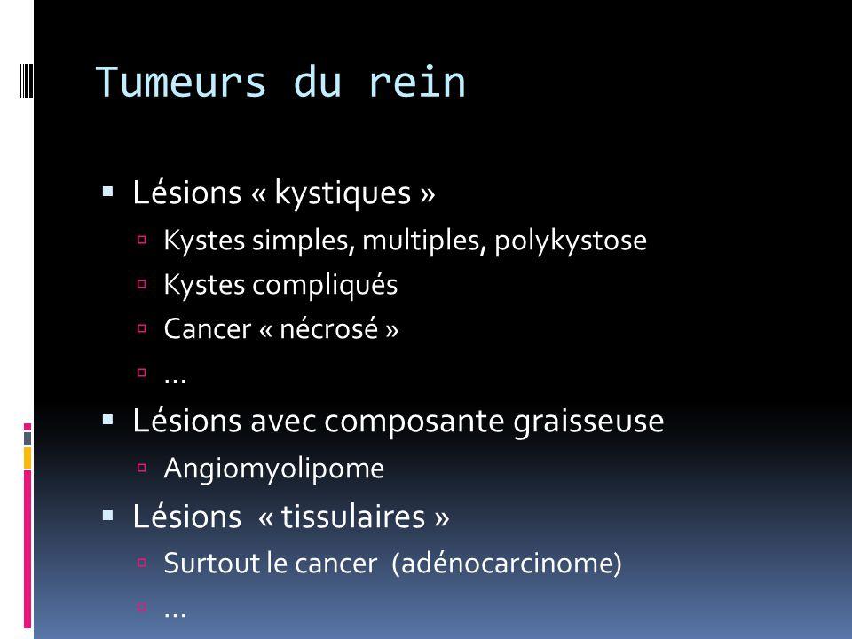 Tumeurs du rein  Lésions « kystiques »  Kystes simples, multiples, polykystose  Kystes compliqués  Cancer « nécrosé »  …  Lésions avec composant