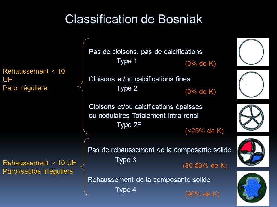 Pas de cloisons, pas de calcifications Type 1 Cloisons et/ou calcifications fines Type 2 Cloisons et/ou calcifications épaisses ou nodulaires Totaleme