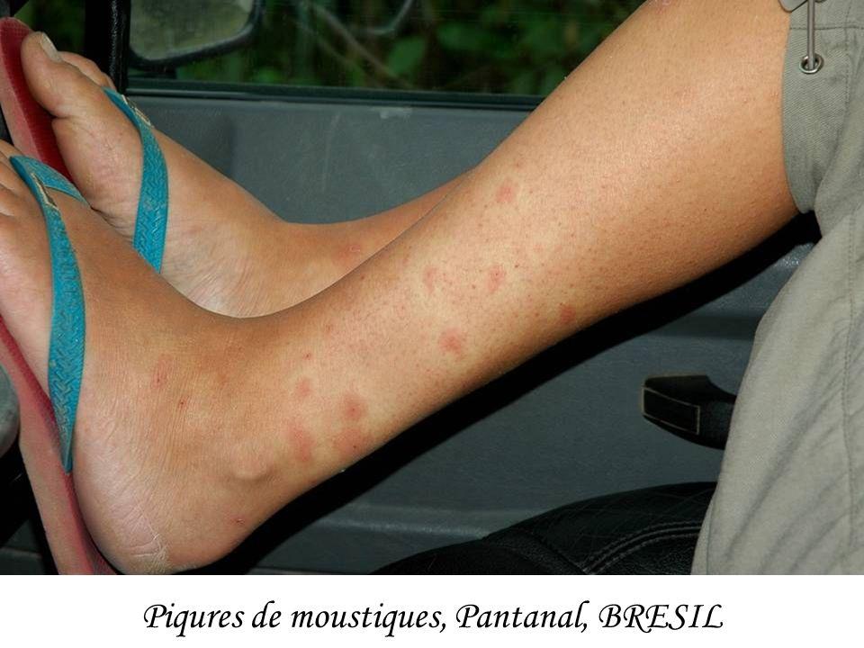 Piqures de moustiques, Pantanal, BRESIL
