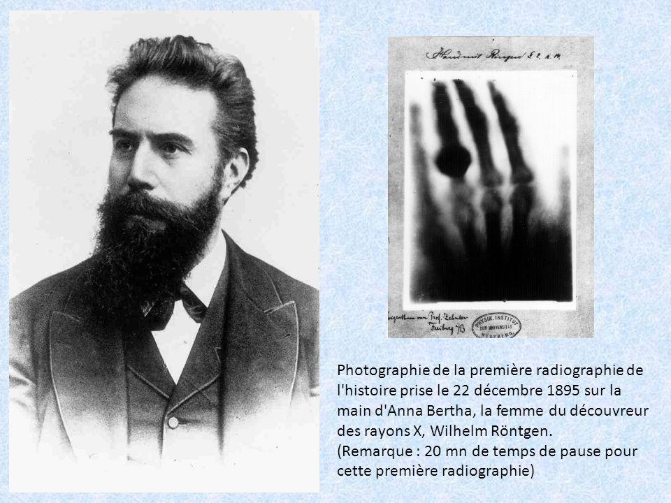 Photographie de la première radiographie de l'histoire prise le 22 décembre 1895 sur la main d'Anna Bertha, la femme du découvreur des rayons X, Wilhe