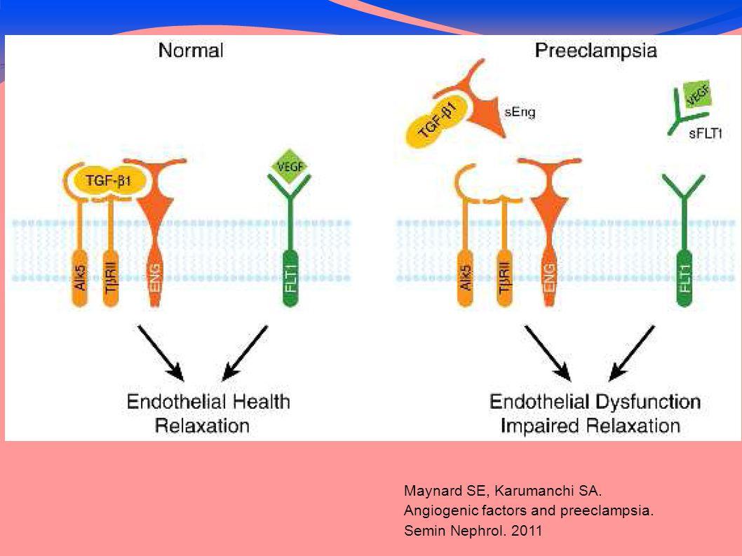 Maynard SE, Karumanchi SA. Angiogenic factors and preeclampsia. Semin Nephrol. 2011