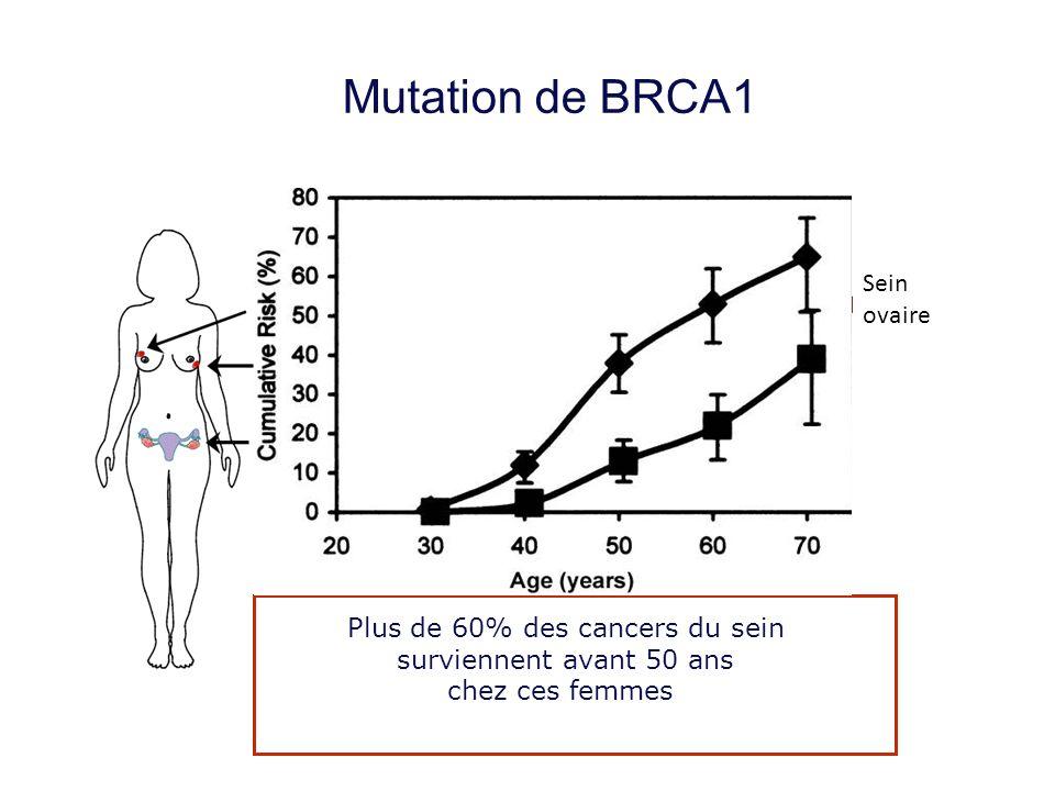 Mutation de BRCA1 Cancer du sein : Sein ovaire Cancer du sein controlatéral : Cancer de l'ovaire : Plus de 60% des cancers du sein surviennent avant 5