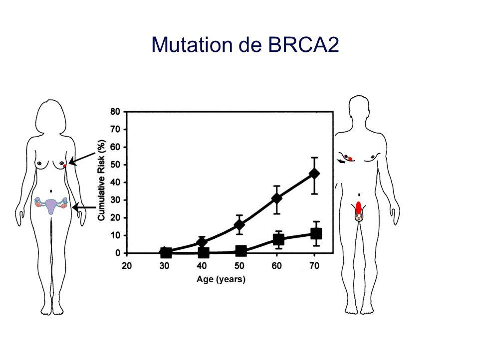 Mutation de BRCA2 Cancer du sein Cancer du sein masculin Cancer de l'ovaire