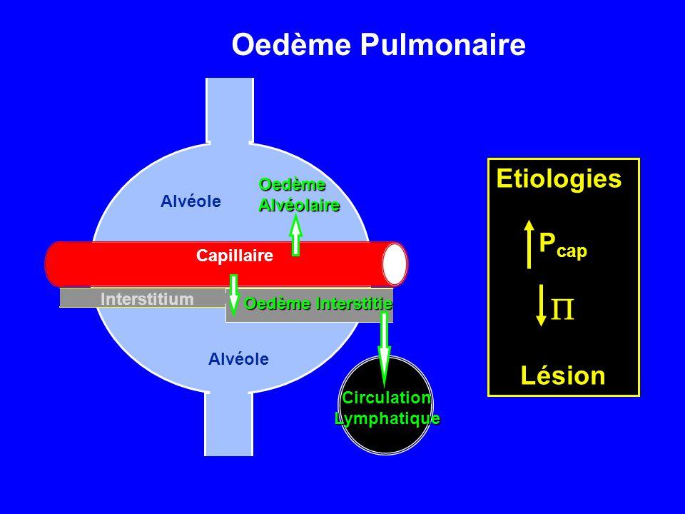 Capillaire Interstitium Alvéole CirculationLymphatique Oedème Interstitiel OedèmeAlvéolaire Oedème Pulmonaire Etiologies P cap  Lésion