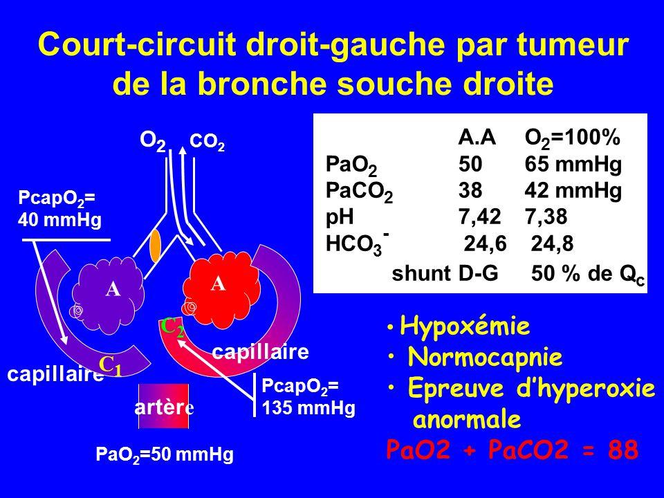 Court-circuit droit-gauche par tumeur de la bronche souche droite A.AO 2 =100% PaO 2 5065 mmHg PaCO 2 3842 mmHg pH7,427,38 HCO 3 - 24,6 24,8 shunt D-G