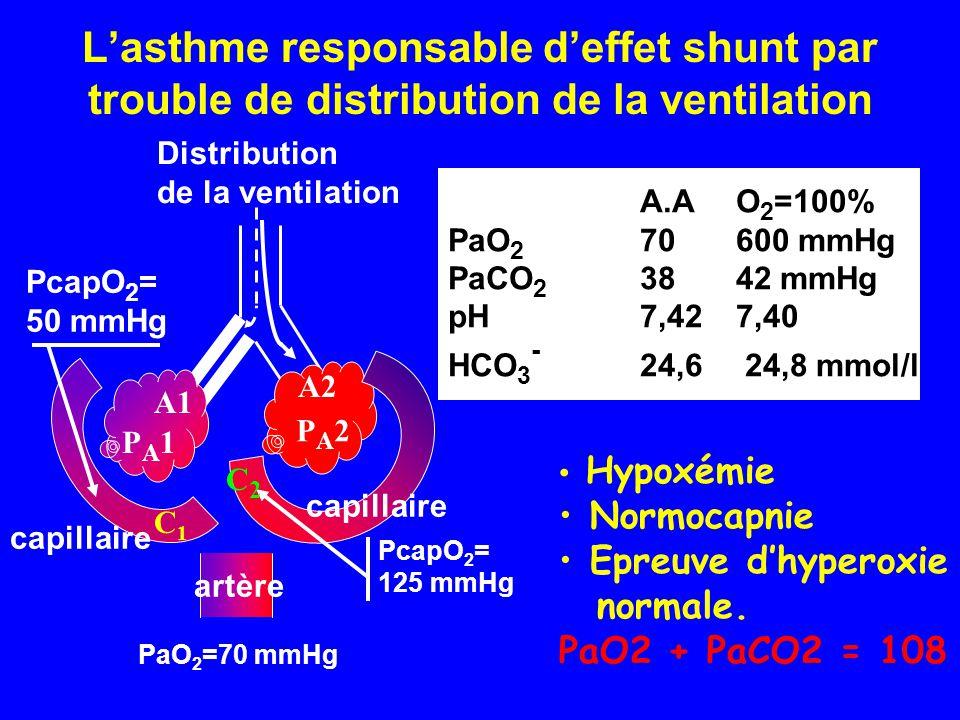 L'asthme responsable d'effet shunt par trouble de distribution de la ventilation A.AO 2 =100% PaO 2 70600 mmHg PaCO 2 3842 mmHg pH7,427,40 HCO 3 - 24,