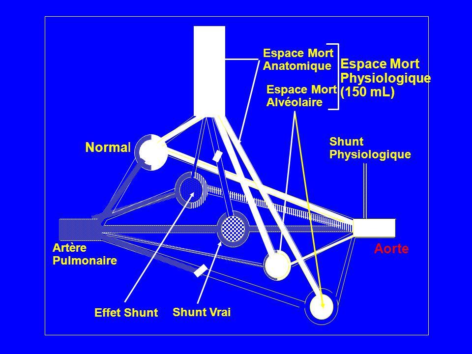 Normal Effet Shunt Shunt Vrai Espace Mort Alvéolaire Shunt Physiologique Aorte Artère Pulmonaire Espace Mort Anatomique Espace Mort Physiologique (150