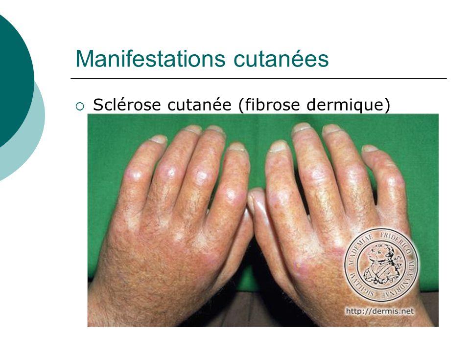 Manifestations cutanées  Sclérose cutanée (fibrose dermique)  impossibilité de pincer la peau.