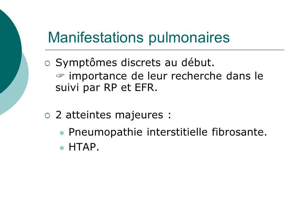 Manifestations pulmonaires  Pneumopathie interstitielle fibrosante.
