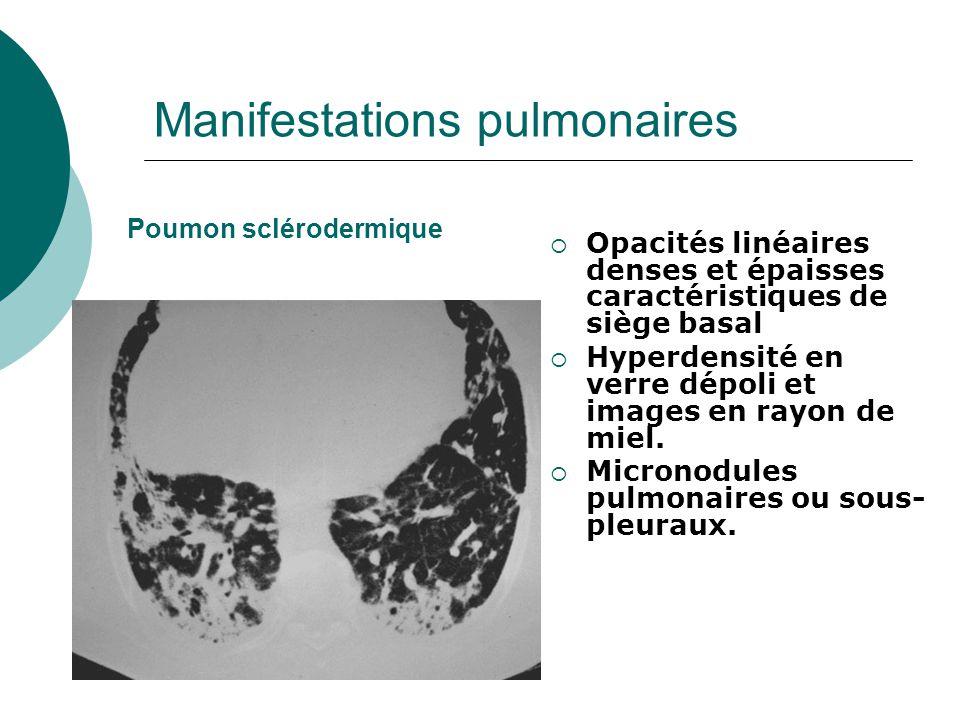 Manifestations pulmonaires  Opacités linéaires denses et épaisses caractéristiques de siège basal  Hyperdensité en verre dépoli et images en rayon de miel.
