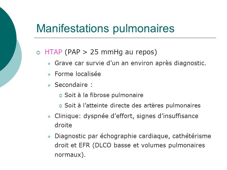 Manifestations pulmonaires  HTAP (PAP > 25 mmHg au repos)  Grave car survie d'un an environ après diagnostic.