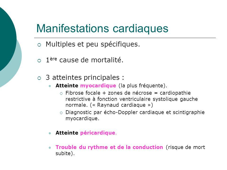 Manifestations cardiaques  Multiples et peu spécifiques.