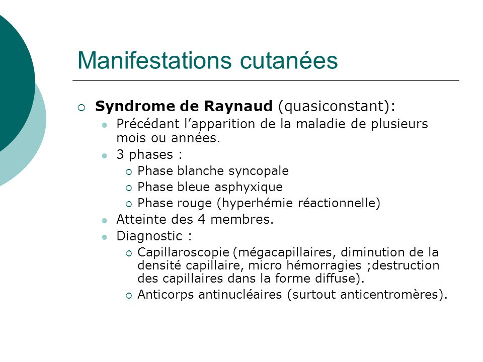 Manifestations cutanées – Syndrome de Raynaud