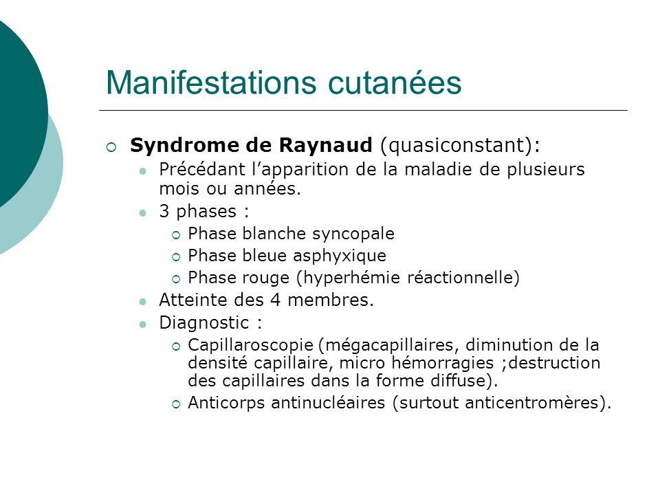 Manifestations cutanées  Syndrome de Raynaud (quasiconstant):  Précédant l'apparition de la maladie de plusieurs mois ou années.
