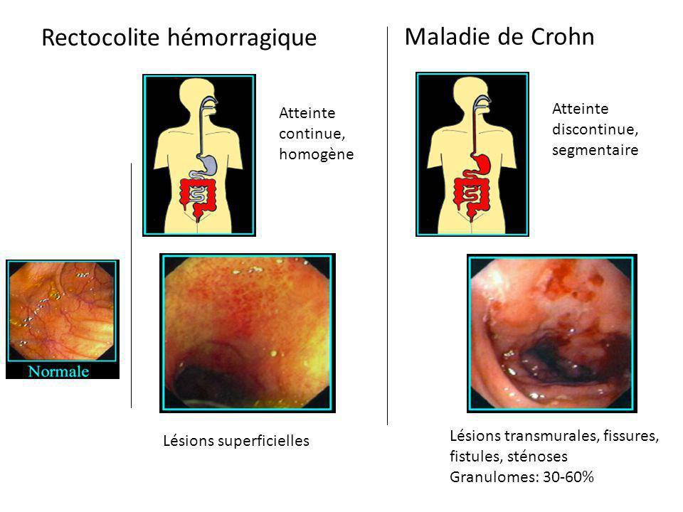 Atteinte continue, homogène Atteinte discontinue, segmentaire Lésions superficielles Lésions transmurales, fissures, fistules, sténoses Granulomes: 30