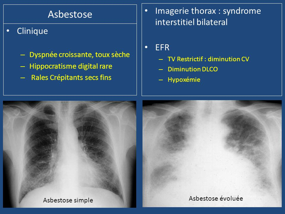 Asbestose • Clinique – Dyspnée croissante, toux sèche – Hippocratisme digital rare – Rales Crépitants secs fins • Imagerie thorax : syndrome interstitiel bilateral • EFR – TV Restrictif : diminution CV – Diminution DLCO – Hypoxémie Asbestose simple Asbestose évoluée