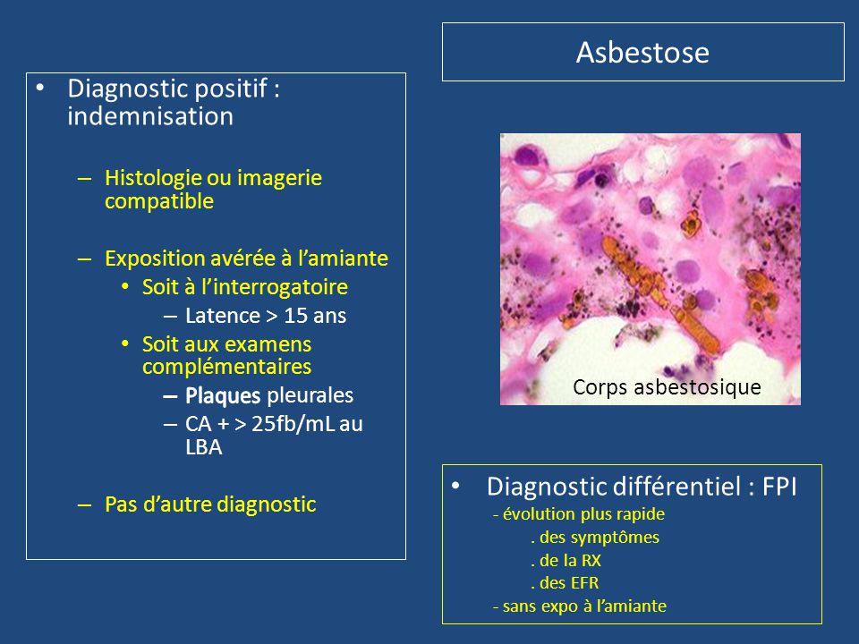 • Diagnostic différentiel : FPI - évolution plus rapide. des symptômes. de la RX. des EFR - sans expo à l'amiante Corps asbestosique Asbestose