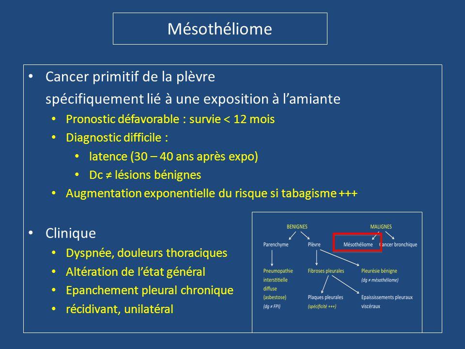 Mésothéliome • Cancer primitif de la plèvre spécifiquement lié à une exposition à l'amiante • Pronostic défavorable : survie < 12 mois • Diagnostic di