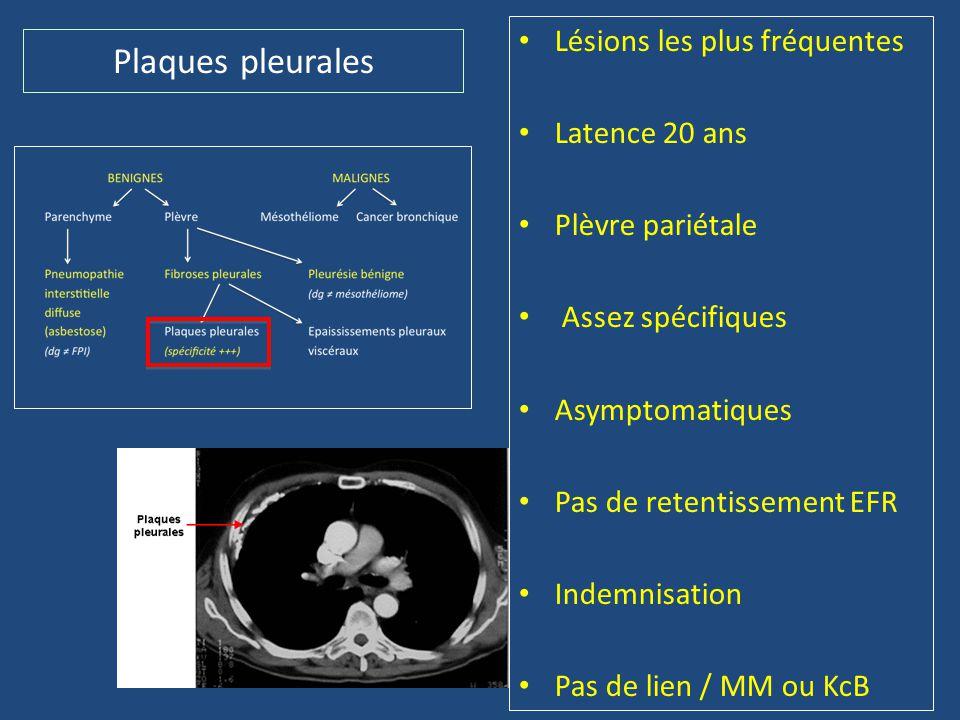 Plaques pleurales • Lésions les plus fréquentes • Latence 20 ans • Plèvre pariétale • Assez spécifiques • Asymptomatiques • Pas de retentissement EFR
