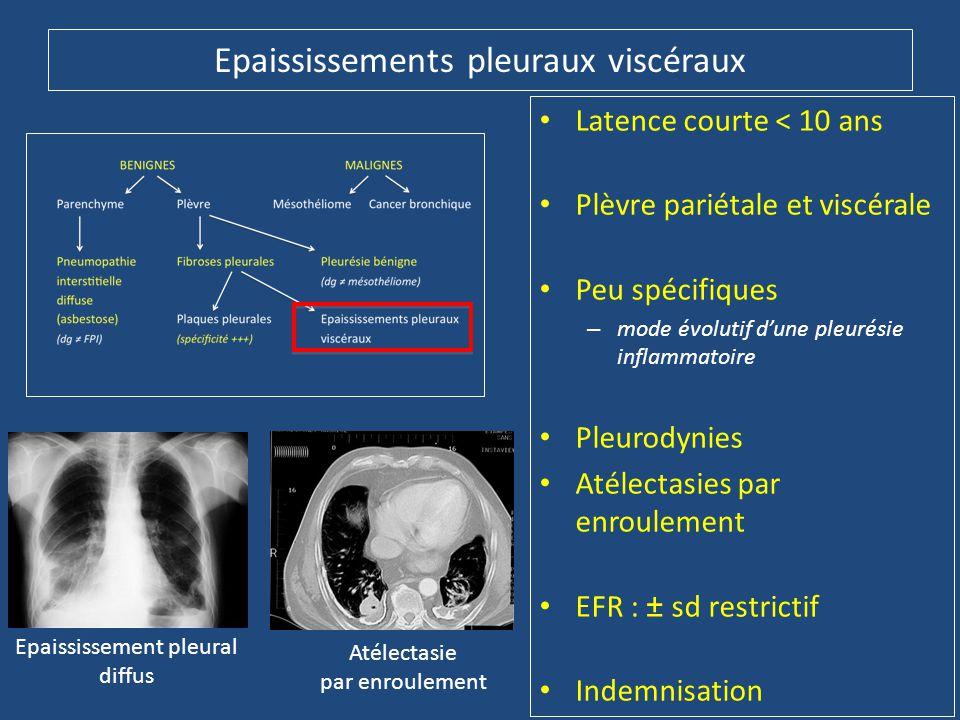 Epaississements pleuraux viscéraux • Latence courte < 10 ans • Plèvre pariétale et viscérale • Peu spécifiques – mode évolutif d'une pleurésie inflamm