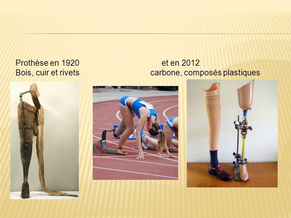 Prothèse en 1920 et en 2012 Bois, cuir et rivets carbone, composés plastiques