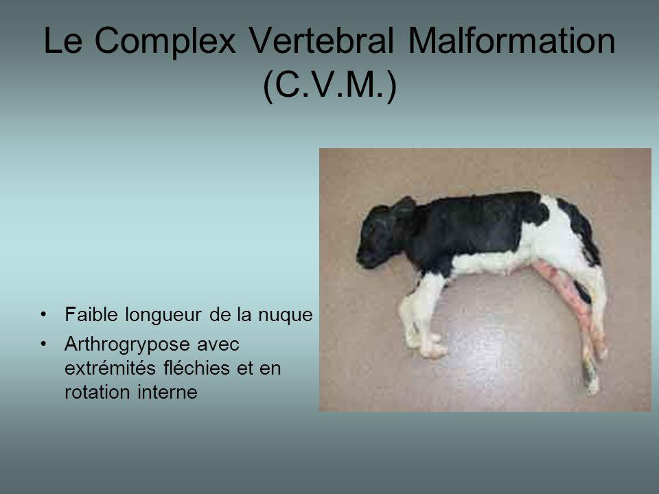 Le Complex Vertebral Malformation (C.V.M.) •Faible longueur de la nuque •Arthrogrypose avec extrémités fléchies et en rotation interne