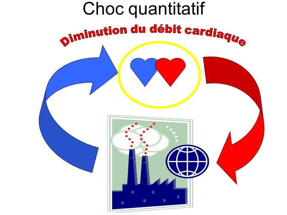 Choc quantitatif