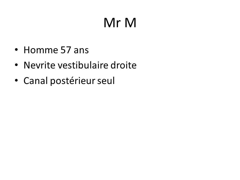 Mr M • Homme 57 ans • Nevrite vestibulaire droite • Canal postérieur seul