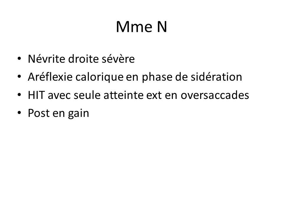 Mme N • Névrite droite sévère • Aréflexie calorique en phase de sidération • HIT avec seule atteinte ext en oversaccades • Post en gain
