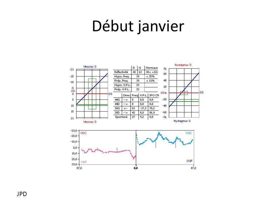 Déficit du gain JPD