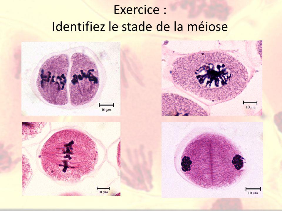 Exercice : Identifiez le stade de la méiose