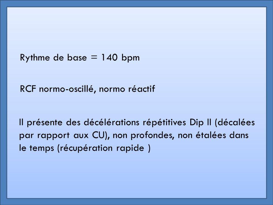 Rythme de base = 140 bpm RCF normo-oscillé, normo réactif Il présente des décélérations répétitives Dip II (décalées par rapport aux CU), non profonde