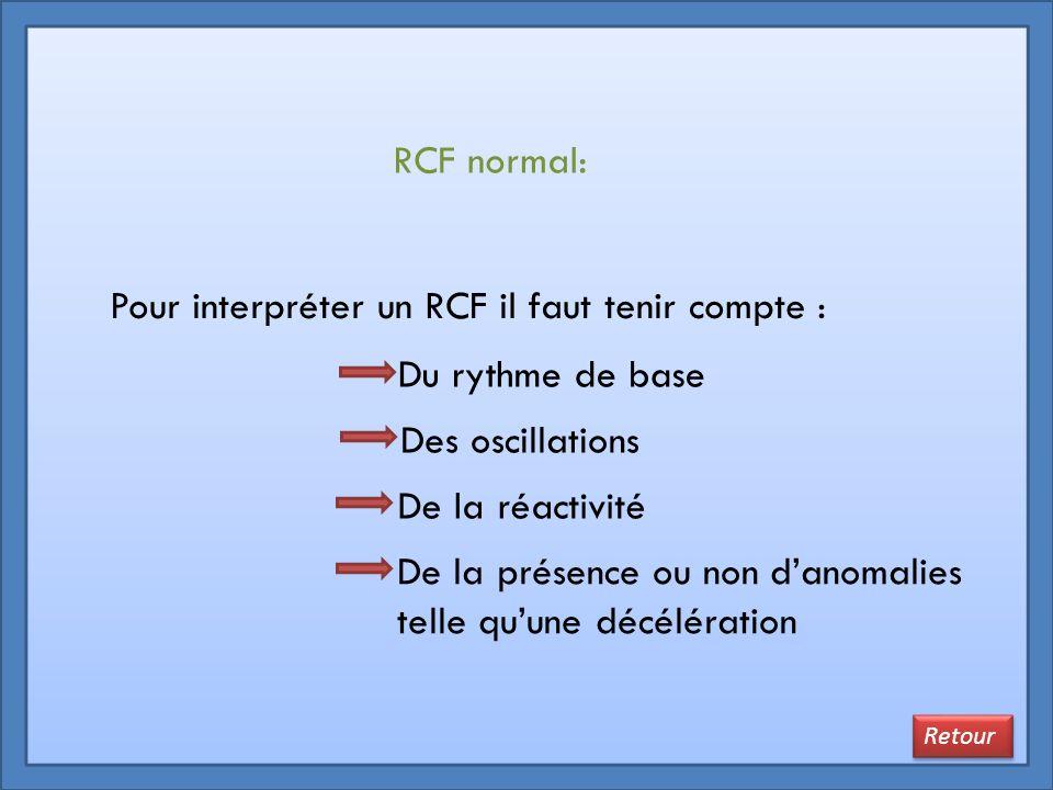 RCF normal: Du rythme de base Des oscillations De la réactivité Pour interpréter un RCF il faut tenir compte : Retour De la présence ou non d'anomalie