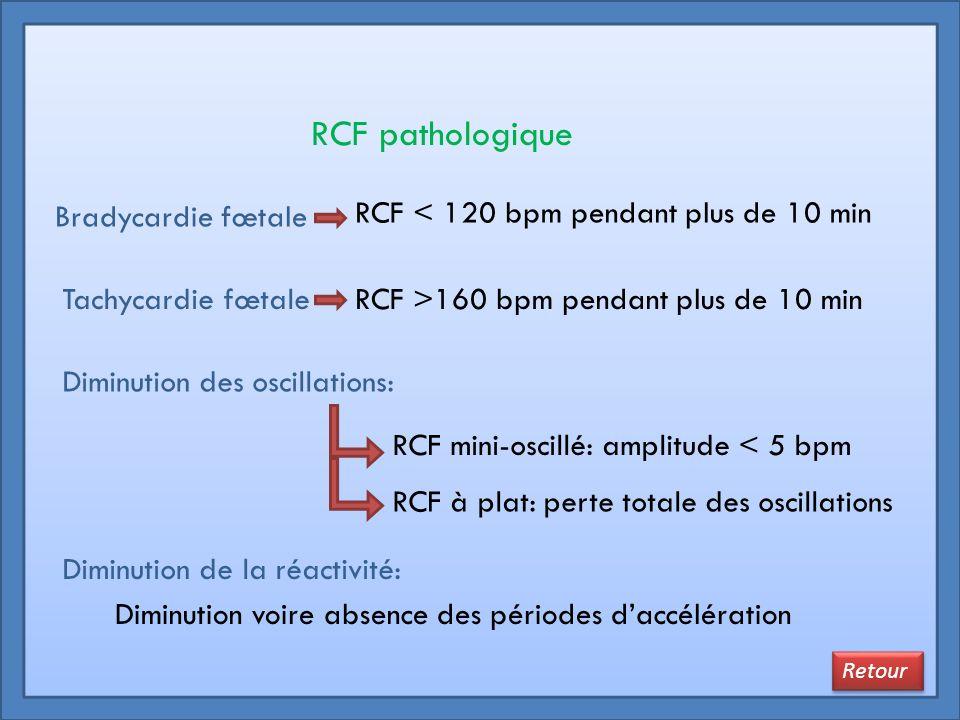 RCF pathologique Bradycardie fœtale Tachycardie fœtale Diminution des oscillations: RCF < 120 bpm pendant plus de 10 min RCF >160 bpm pendant plus de